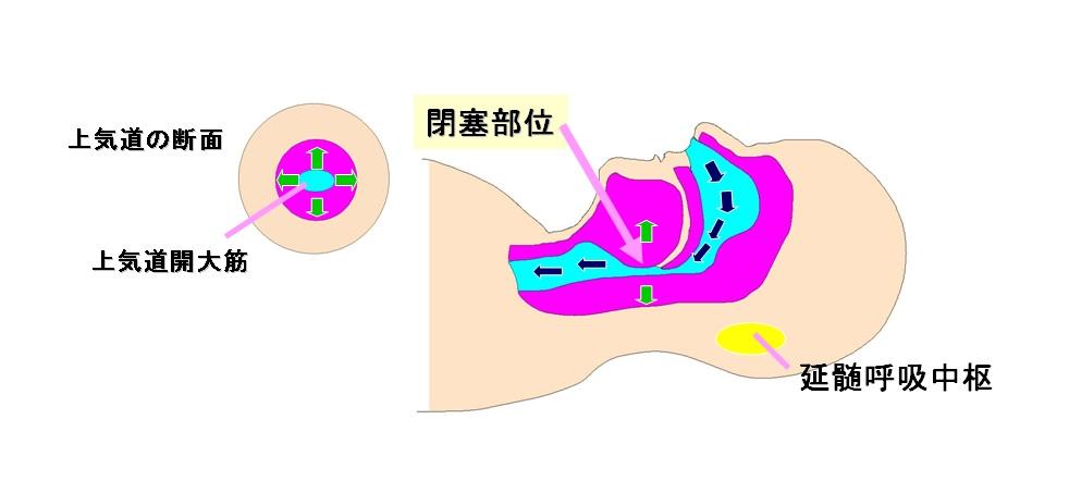 SAS 図1